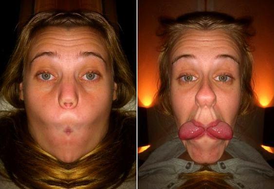Aplicativo de simetria facial
