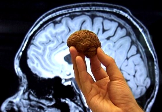 Cérebro de chocólatra