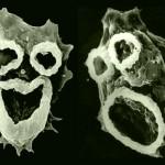 Naegleria fowleri: a ameba zumbi comedora de cérebros